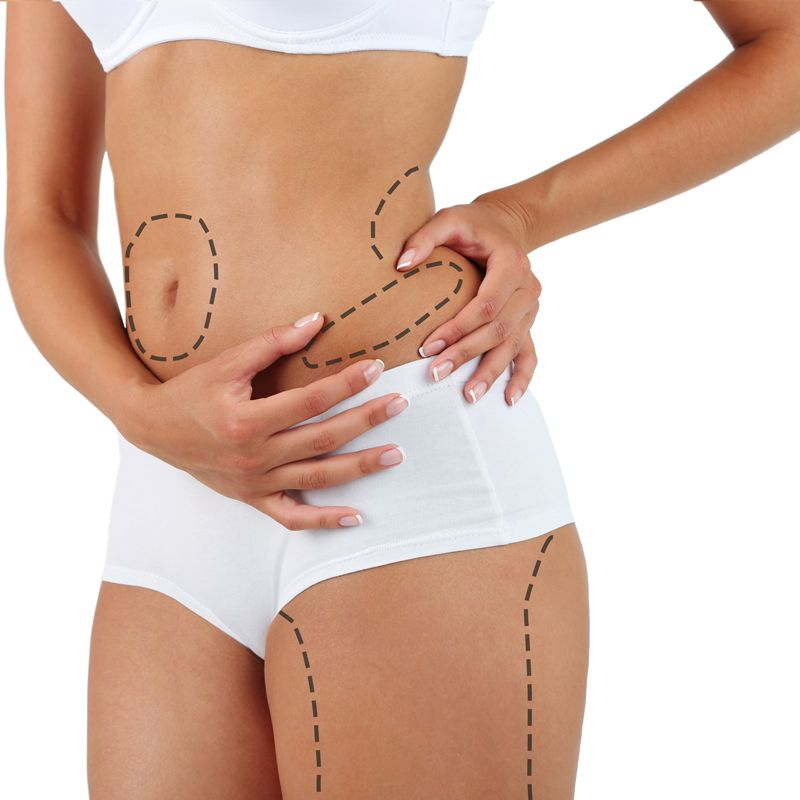 LIPOSUCTION (2-3 body areas)